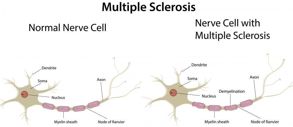 A neurologist may supervise studies on conditions like multiple sclerosis.
