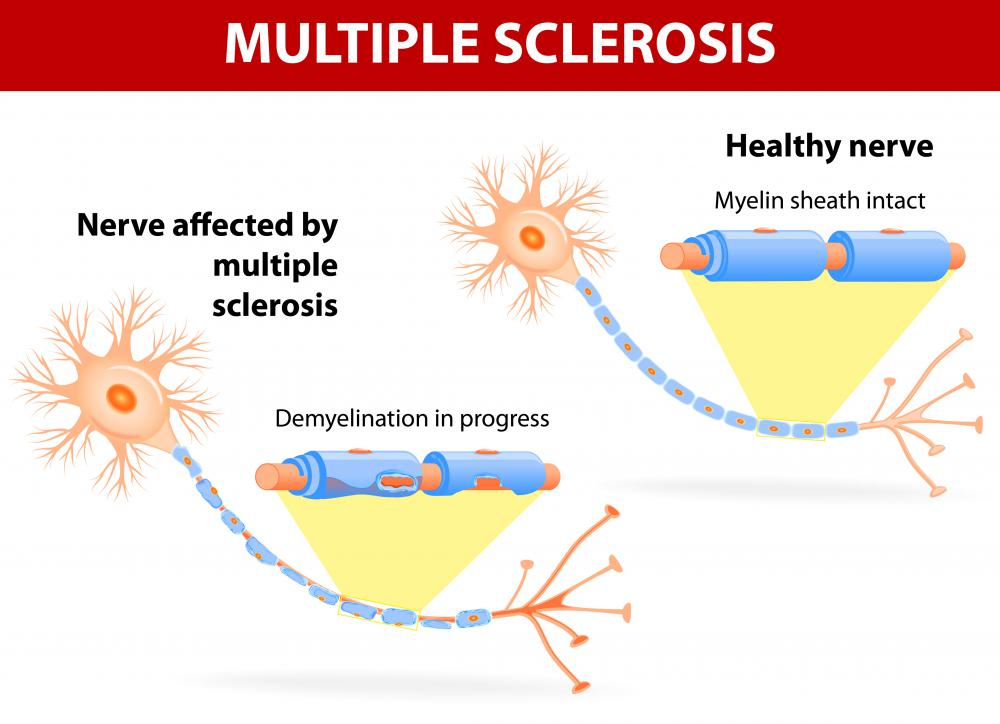 Multiple sclerosis is a disorder that arises when an individual's immune system attacks the myelin sheaths surrounding axons in the central nervous system.