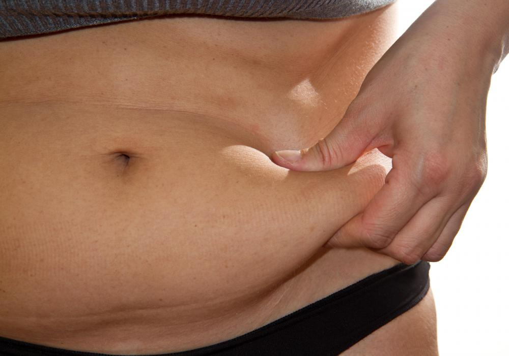 Obesity may contribute to the development of chafing rashes.