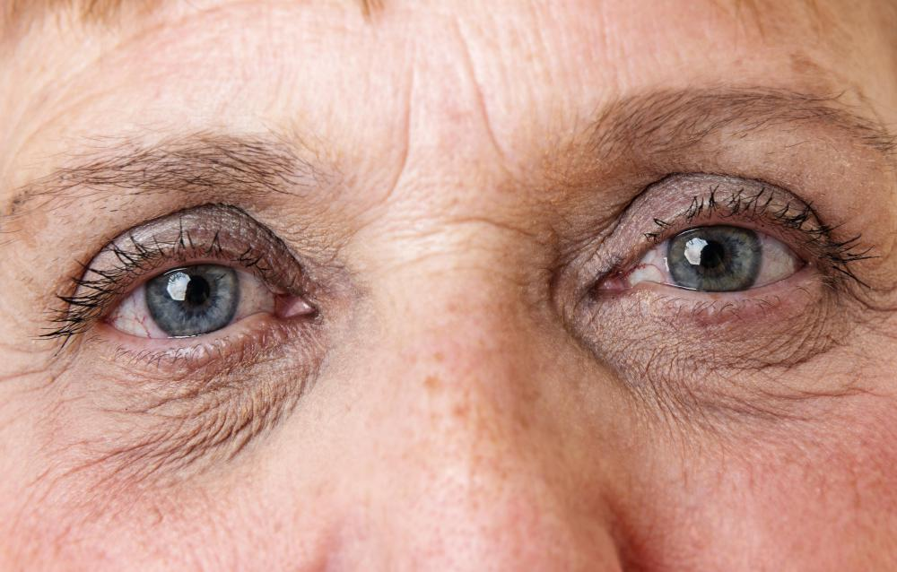Vitamin K may help stave off wrinkles and treat dark discoloration around the eyes.
