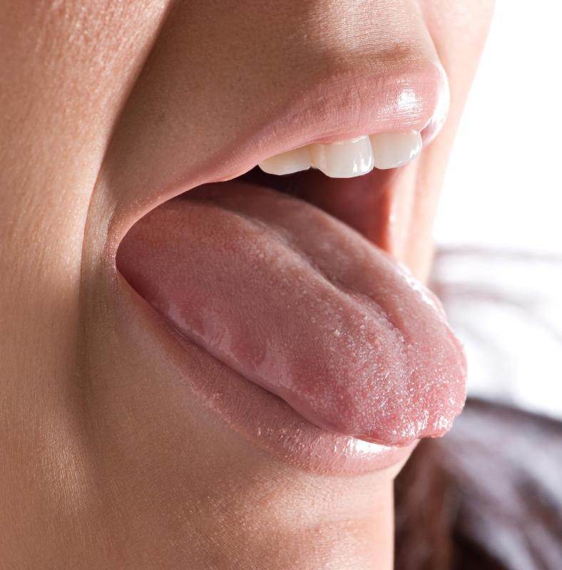 Symptoms of an allergic reaction to a bite may include tongue swelling.
