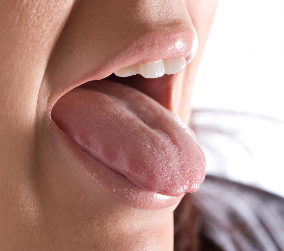 Discolored patches on the tongue may be a sign of geographic tongue.
