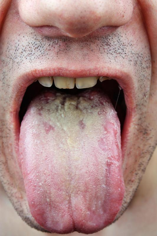 symptoms of oral thrush in adults