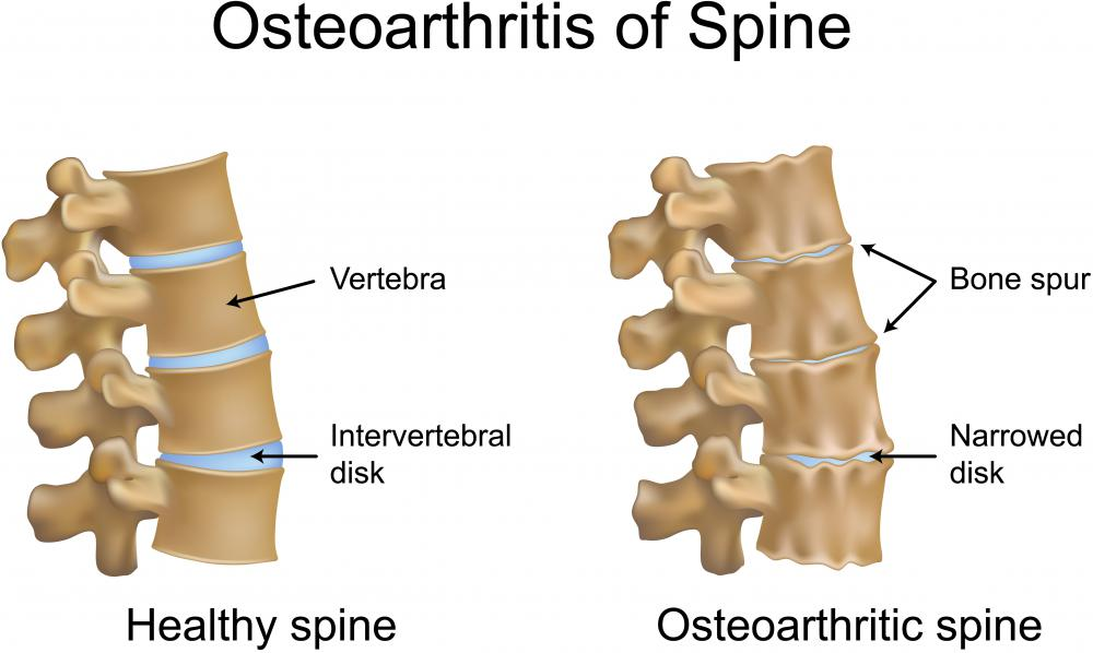 An illustration of a healthy spine and one with spinal osteoarthritis. If the material in the disks between the vertebrae protrude, it is called  Schmorl's nodes.