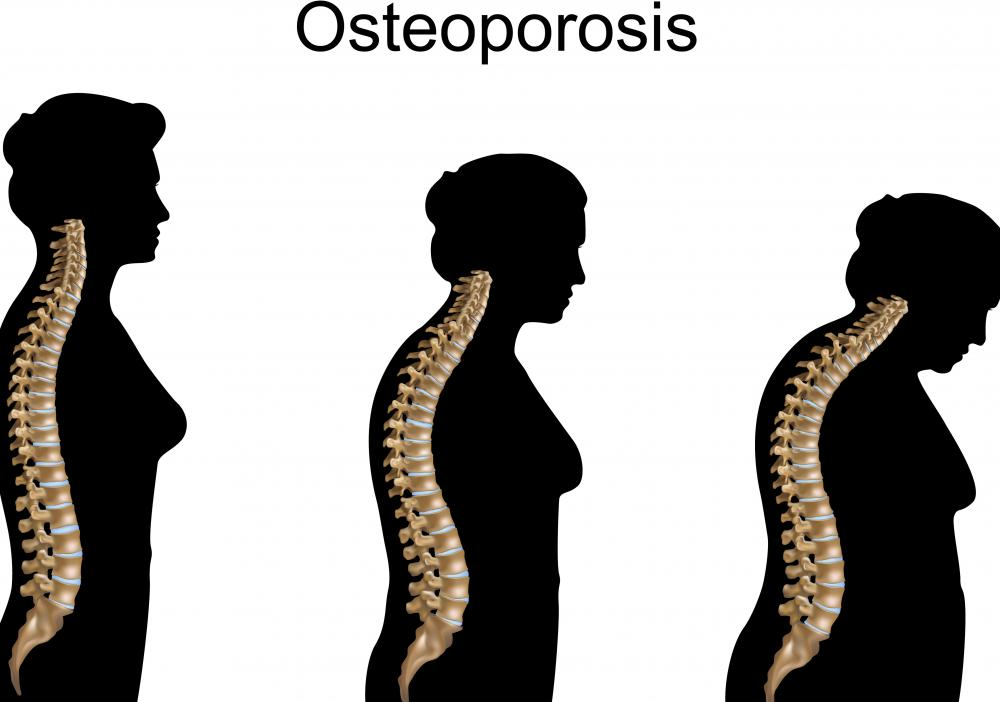 A bone density scan may be used to detect potential osteoporosis.