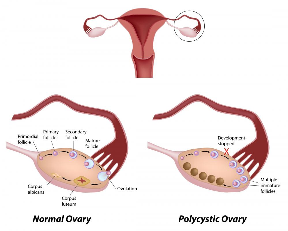 How do I Choose the Best Homeopathic Remedies for Ovarian Cysts?