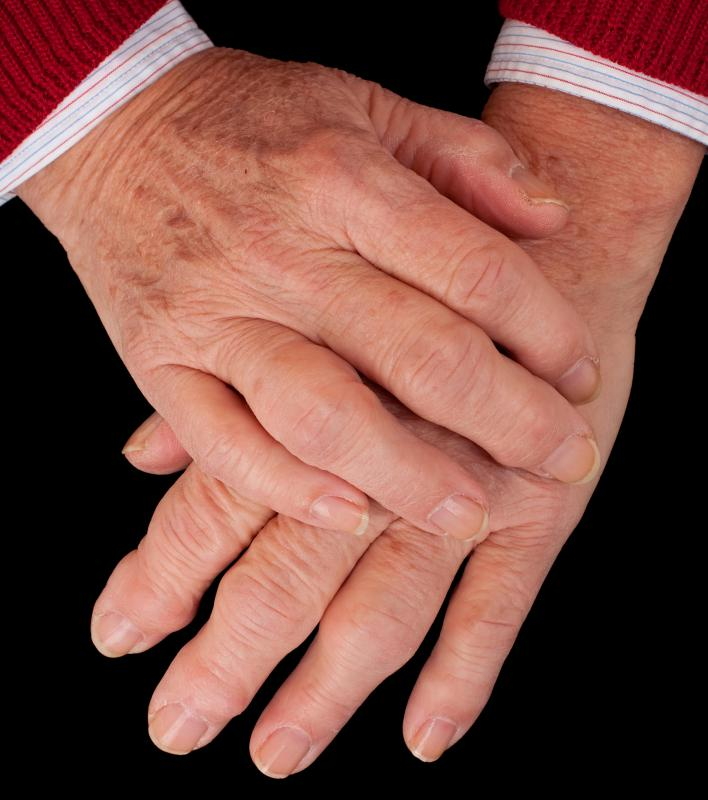 Certain types of medical conditions can cause knuckle swelling.