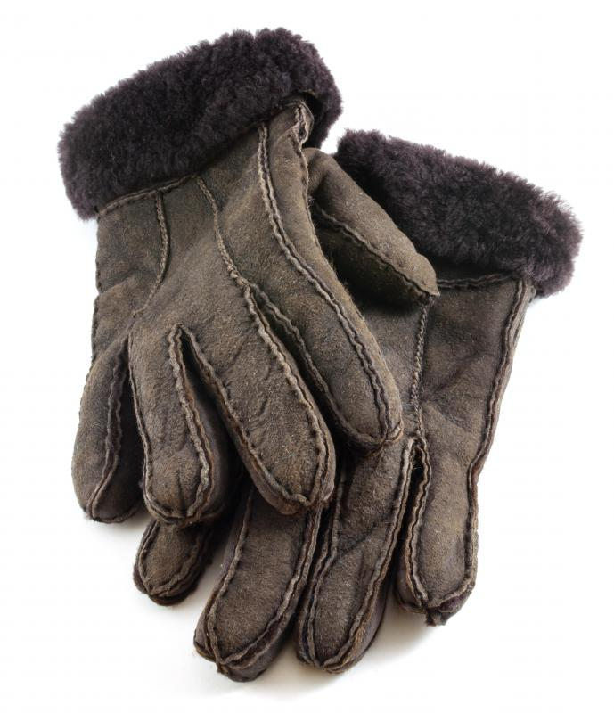 Individuals who experience mottled skin should be especially careful to wear protective gloves and clothing when exposed to the cold and heat.