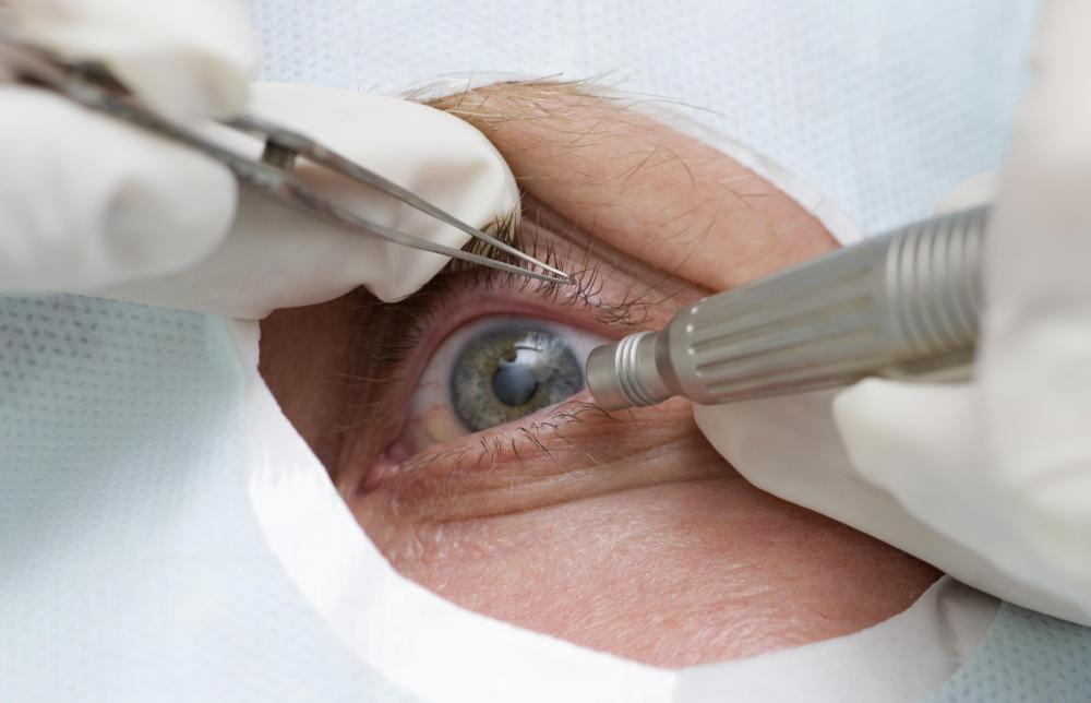 Cataracts are typically removed when they interfere with a patient's daily life.