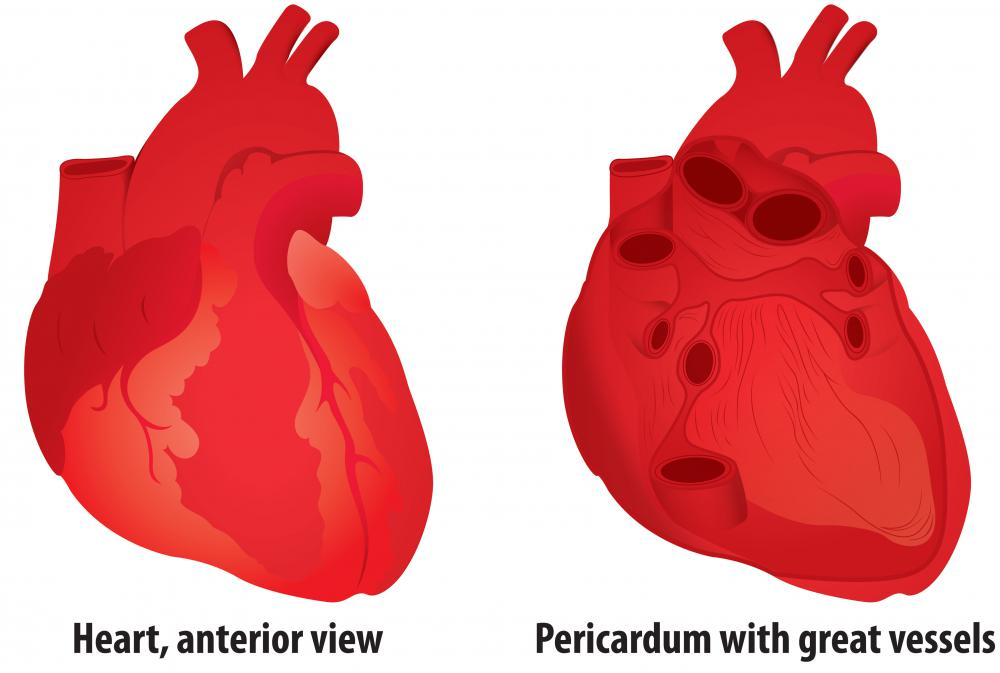 Excess fluid between the heart and the pericardium is referred to as pericardial effusion.