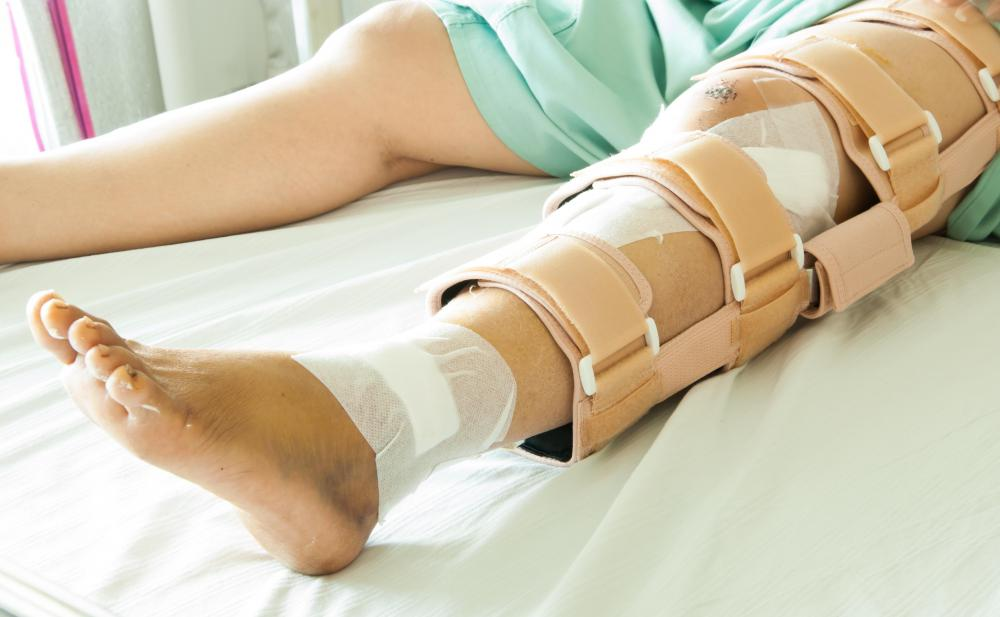 A leg brace may be worn to help improve a spastic gait.
