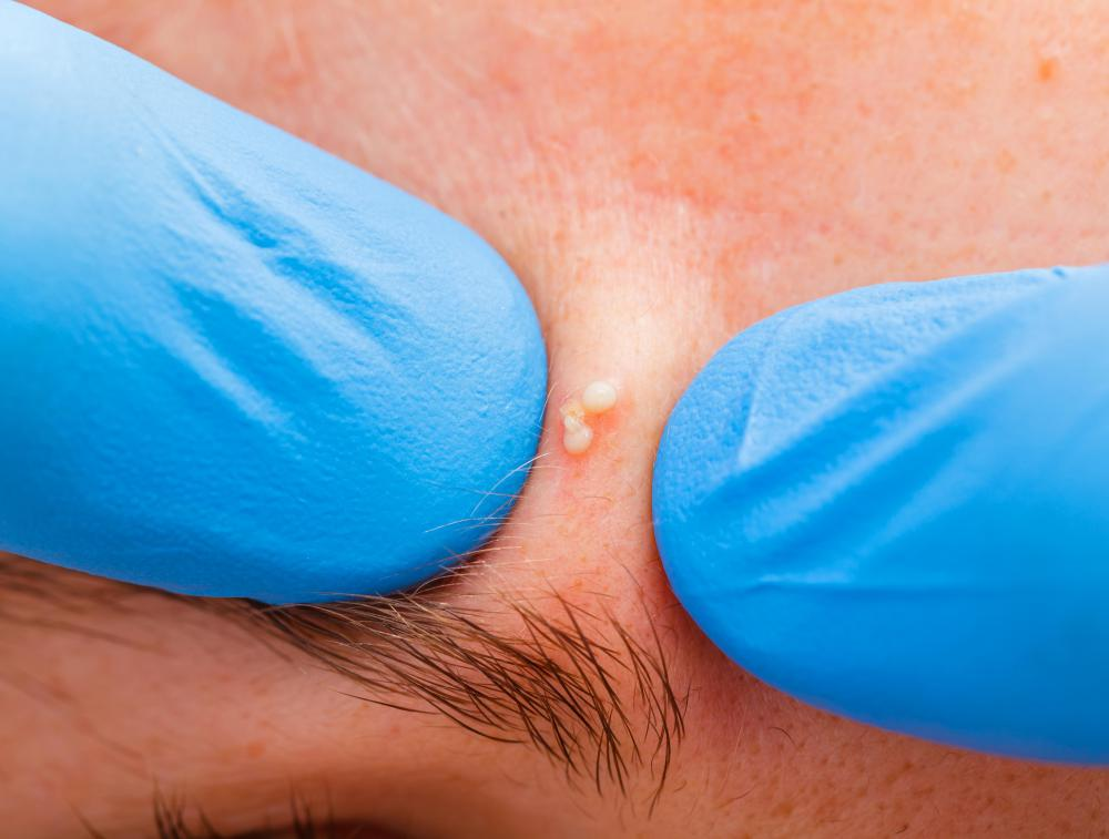 What Is a Dilated Pore? (with pictures)
