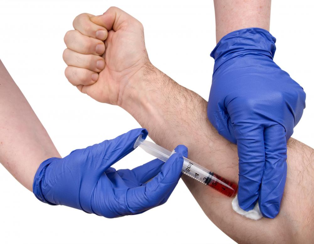 A serum osmolality test involving a blood draw may be required to test for urine osmolality.