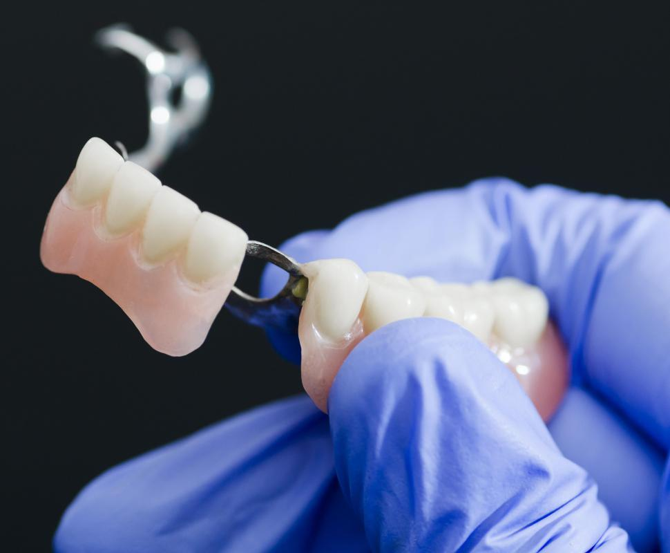 Partial maxillary dentures are designed to fill the gaps left by teeth that have been lost or pulled.