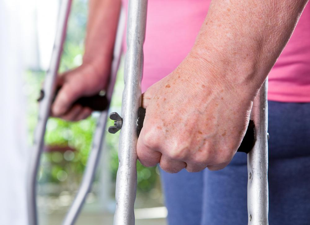 Because limb lengthening surgery requires the legs to be broken, a wheelchair, walker, or crutches will be needed.
