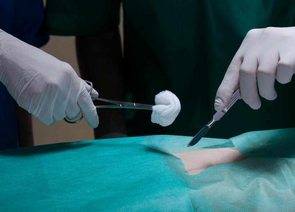 Ozone has been used to sterilize surgical instruments.