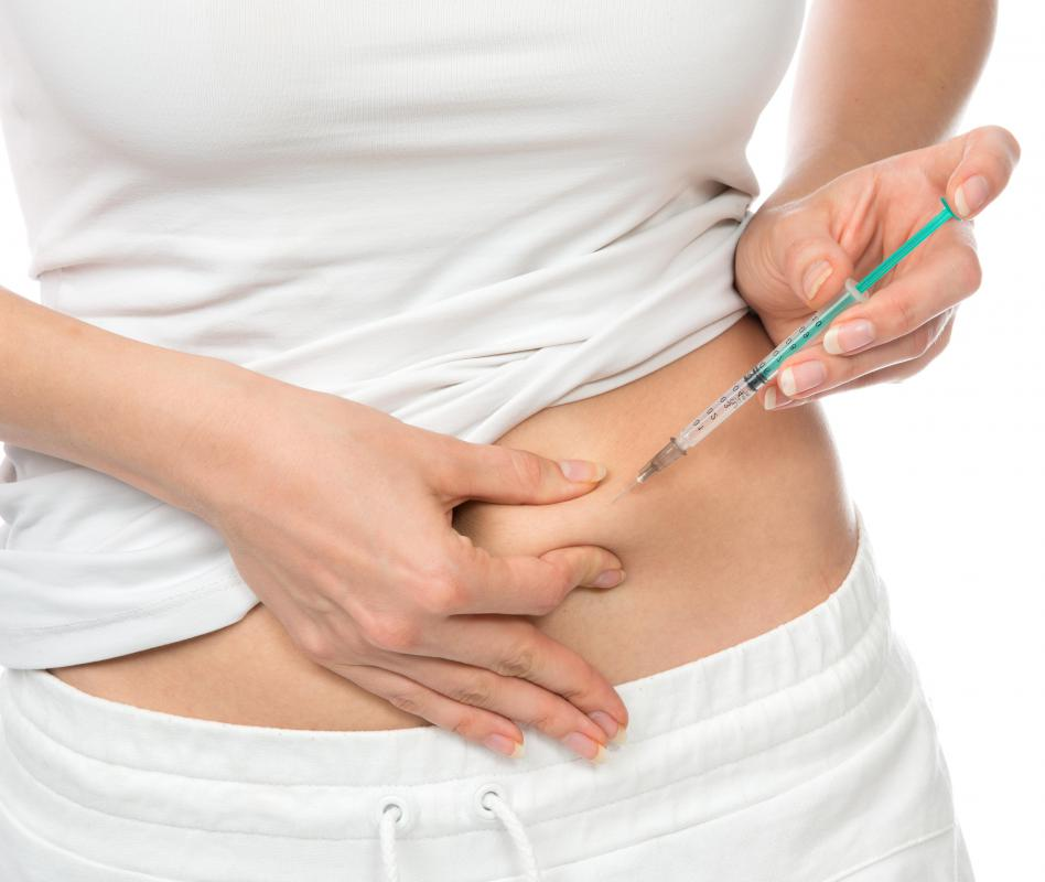 A subcutaneous injection may be given in the abdomen.