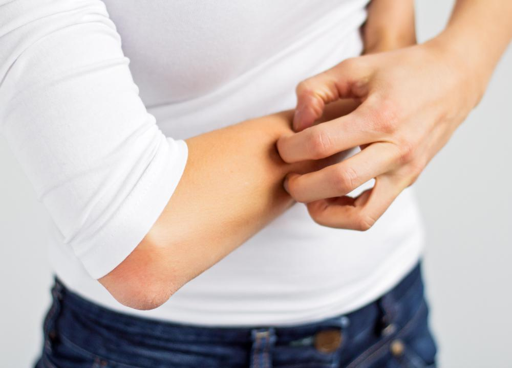 Wearing tight, scratchy clothing may cause an itchy rash.