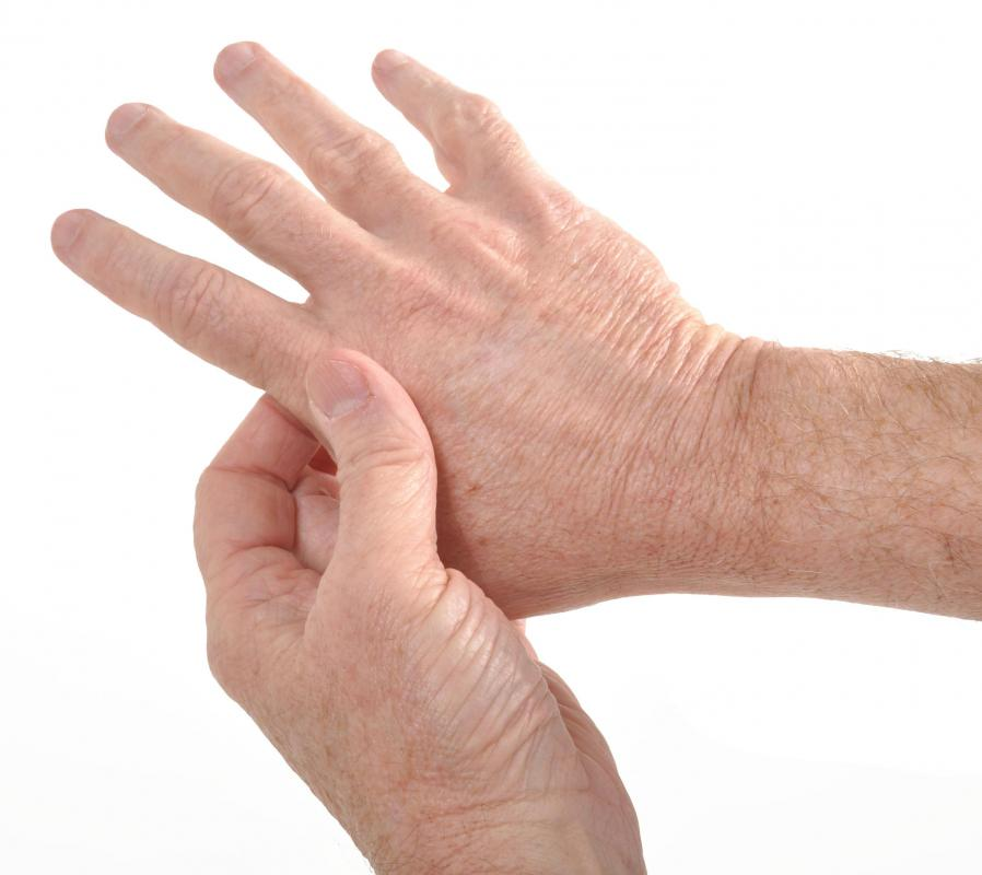 Arthritis can be the cause of hand atrophy.