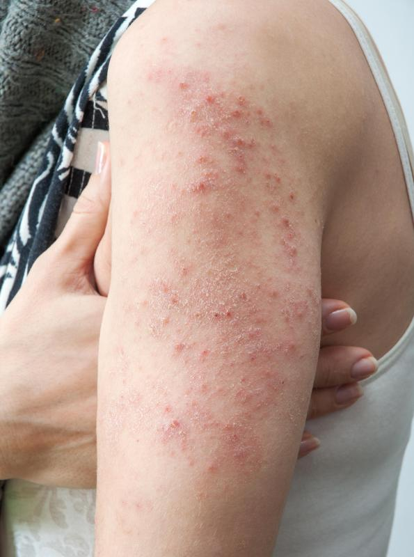 Mottled skin may appear similar to a rash.