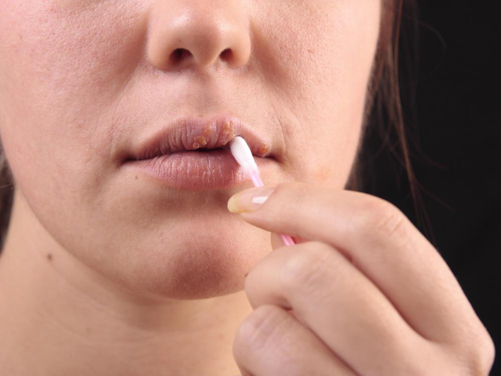 Dry or cracked lips can be treated by applying shea butter lip balm.
