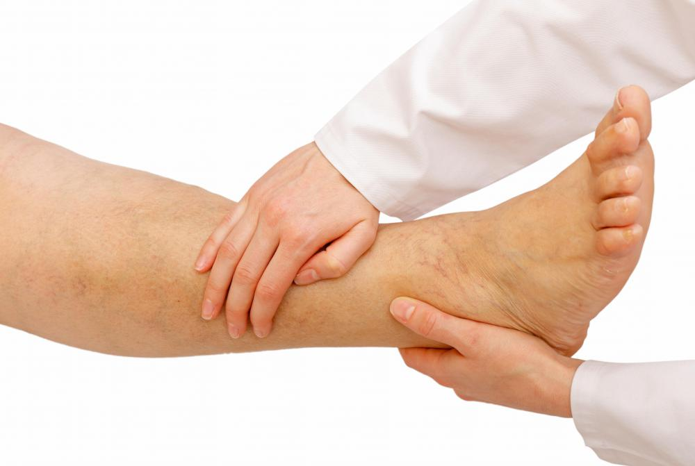 Swelling and pain around the ankle joint are common symptoms of gout.