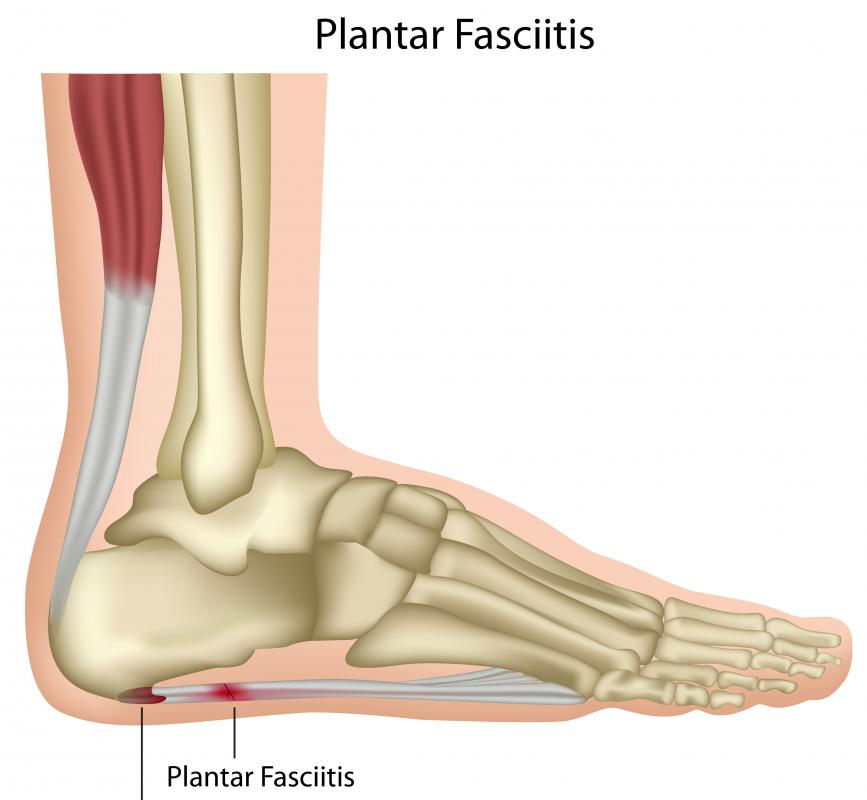 Foot splints to ease the pain of plantar fasciitis are common.