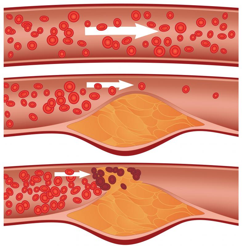 An inferior myocardial infarction is associated with the loosening of an atherosclerotic plaque in the wall of the right coronary artery.