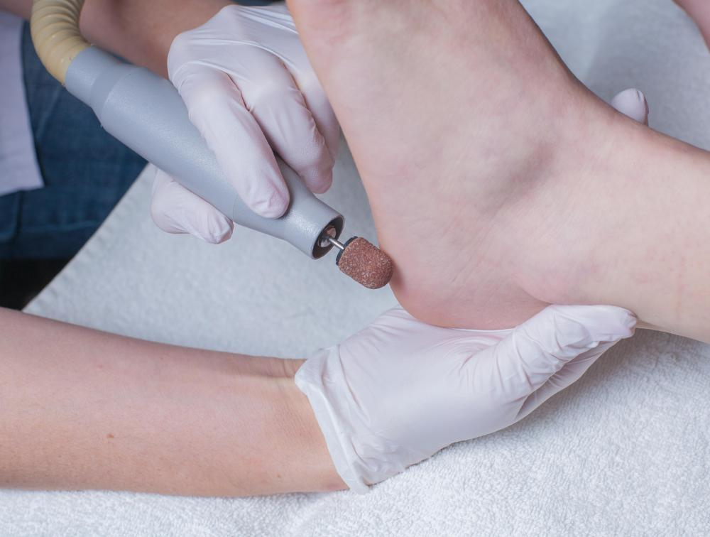A podiatrist may have to perform surgical procedures on a foot.