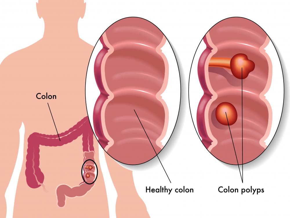 Polyps in the colon may develop into cancer.