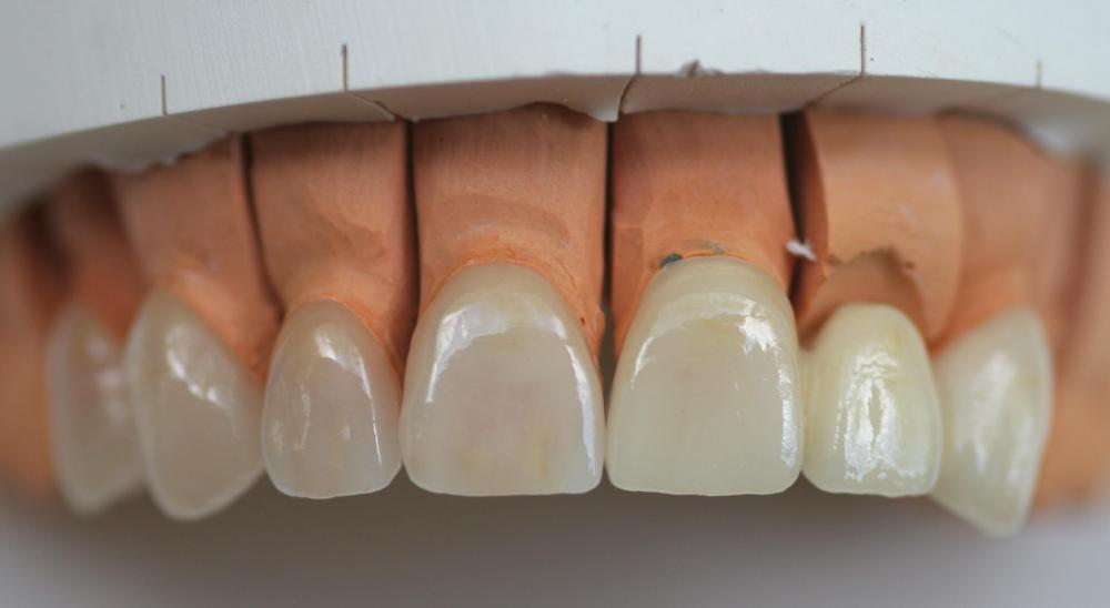 A dental laboratory technician may manufacture veneers.