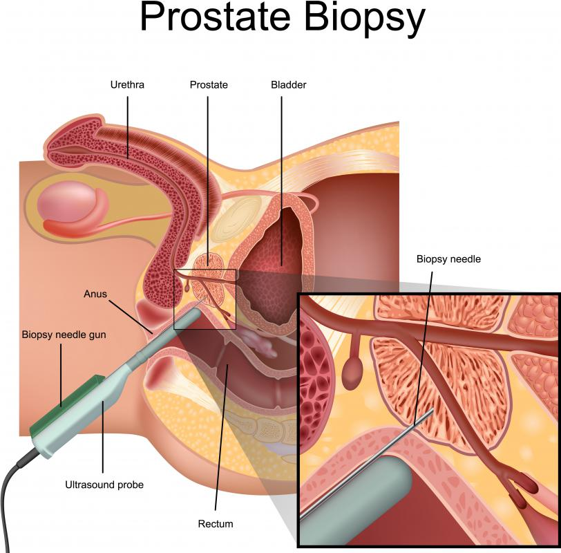 A biopsy is often done to determine if a prostate tumor is malignant or not.