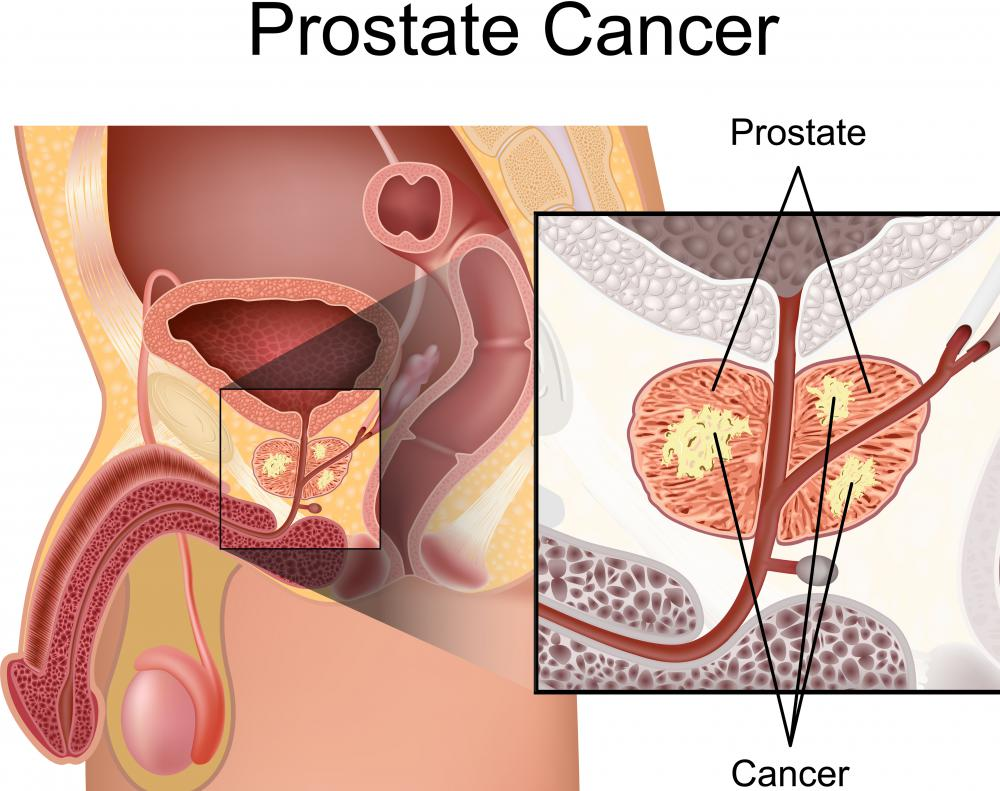 Men undergoing prostate cancer treatment may take tamoxifen to prevent breast enlargement.