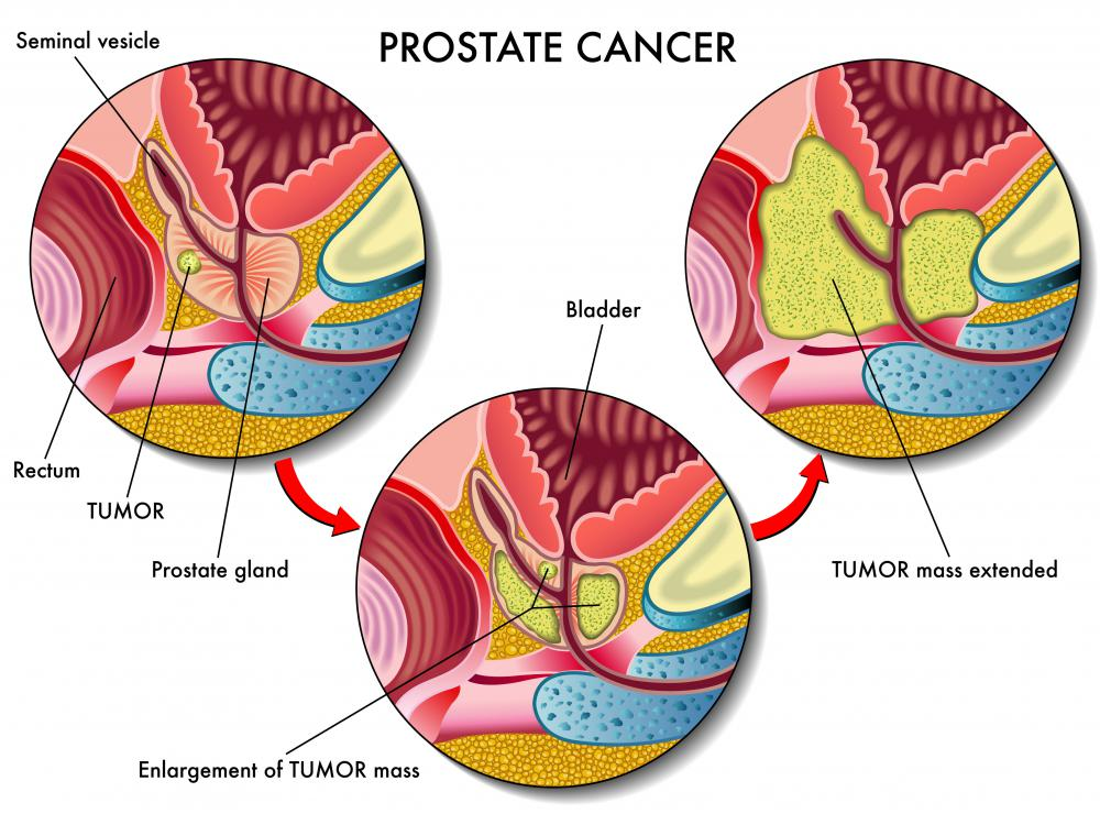 Individuals with prostate cancer should not use pregnenolone.