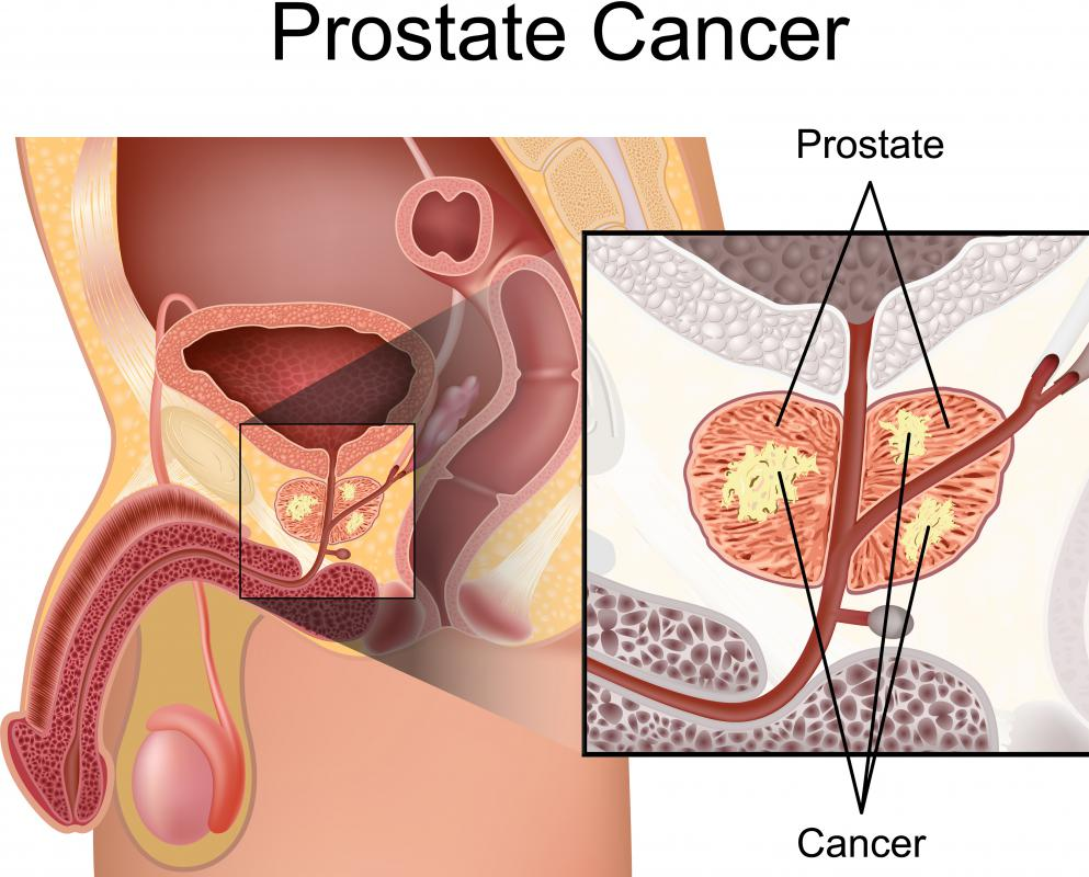 High levels of PSA can be an indicator of prostate cancer.