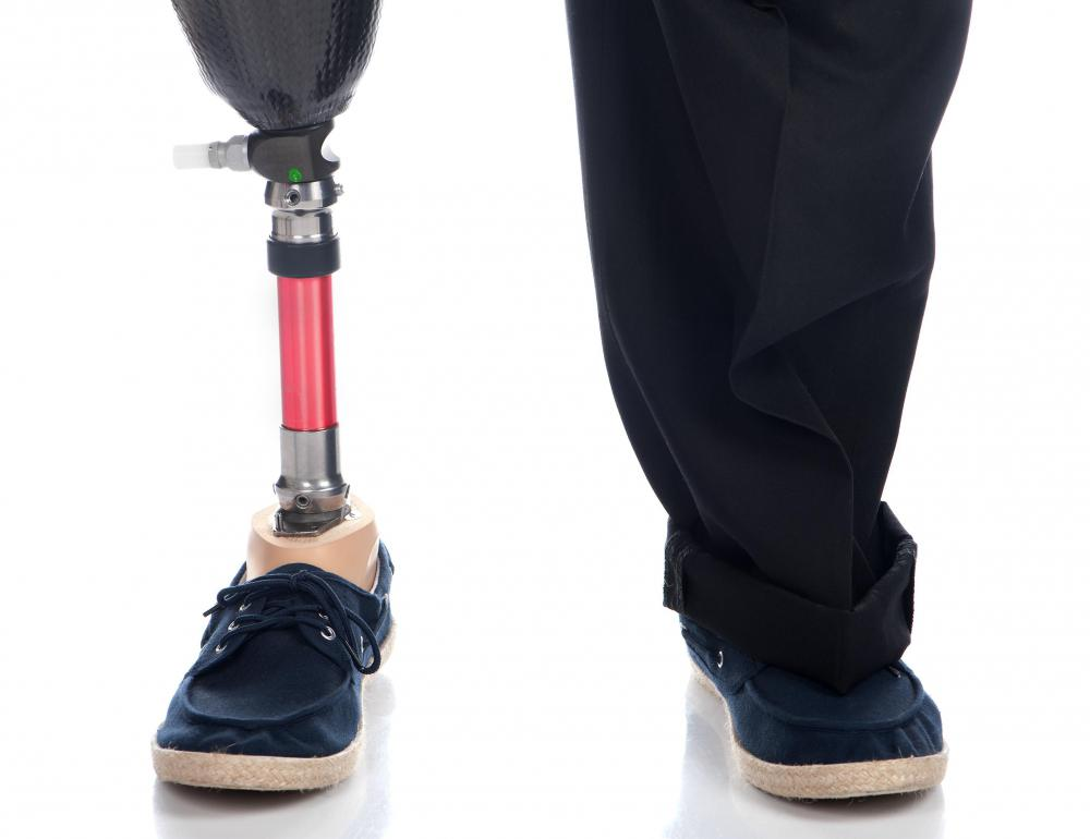 Someone who has lost a leg can walk again using a prosthetic limb.