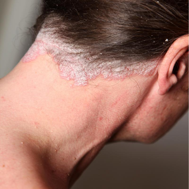 Psoriasis on the scalp may produce unsightly flakes 2