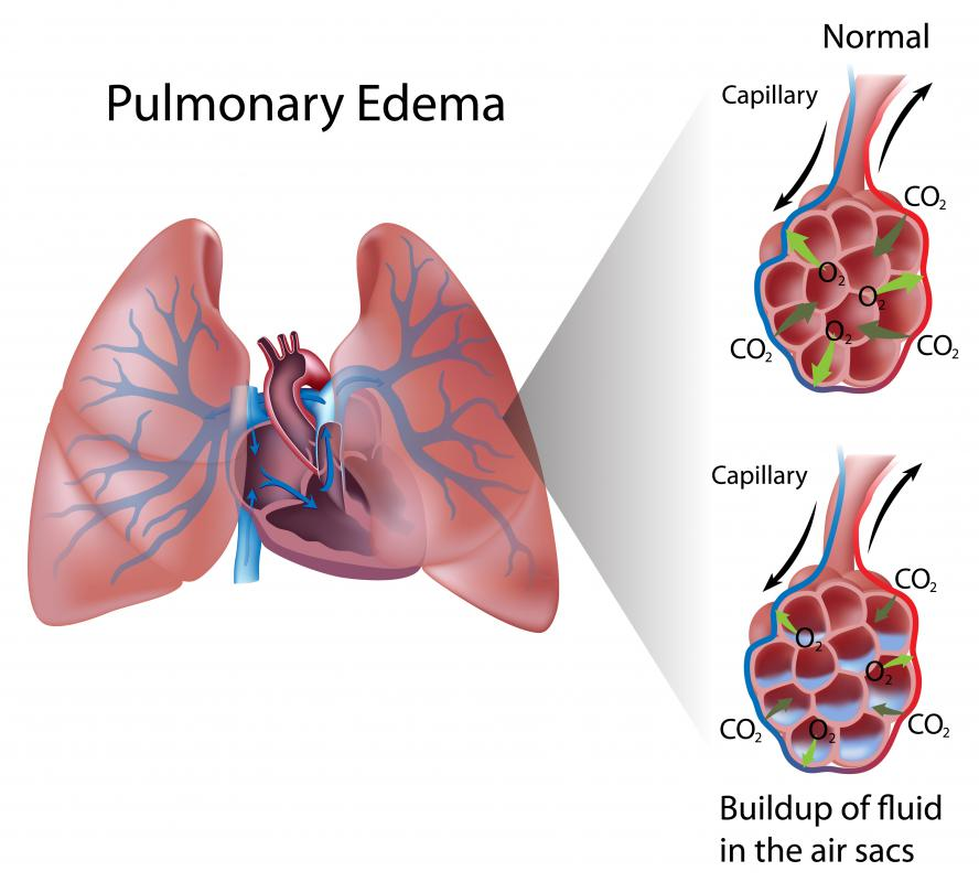 Medical professionals can measure an individual's colloid osmotic pressure to diagnose pulmonary edema.