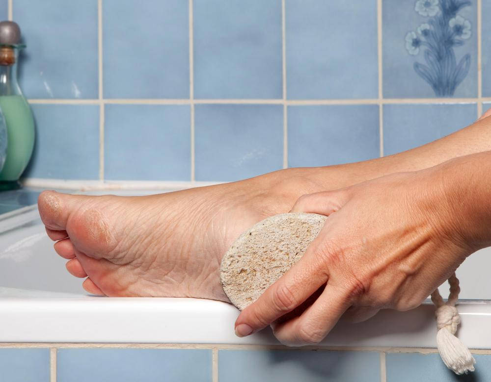 One way of removing a callus at home is rubbing it with a pumice stone.
