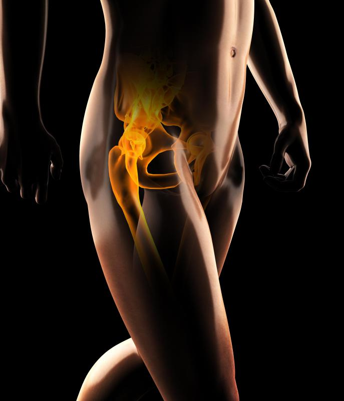 Bursitis is a common cause of joint pain and swelling in the hip.