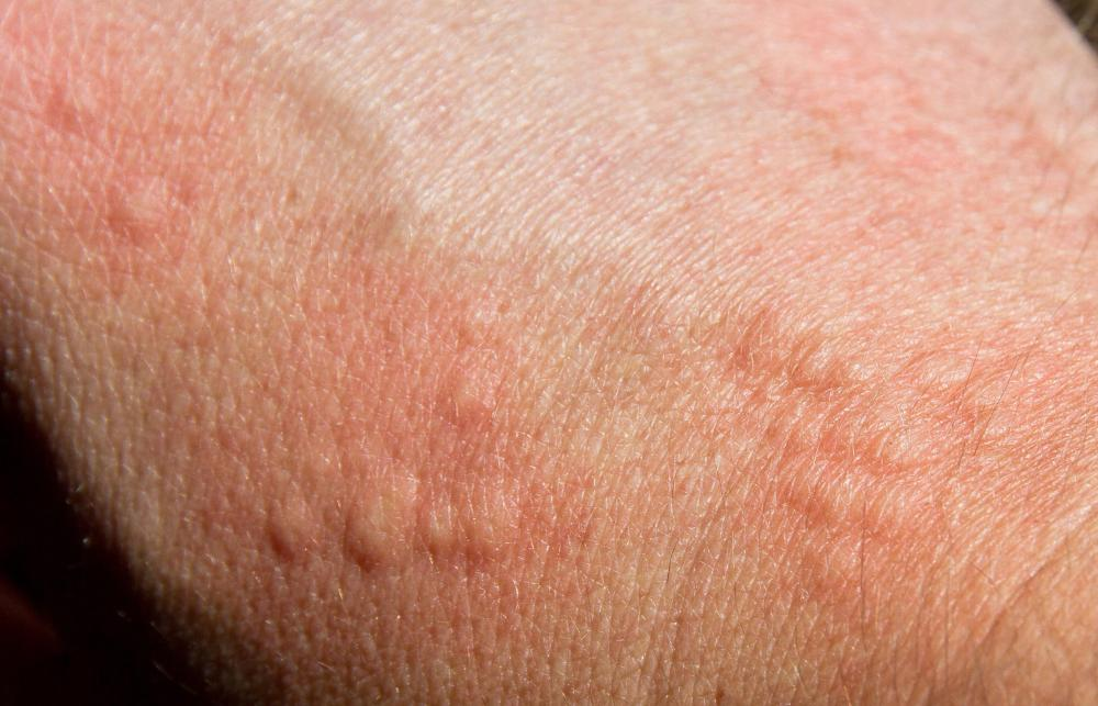 Signs of a mosquito bite may include a raised rash or a series of flesh-colored bumps.