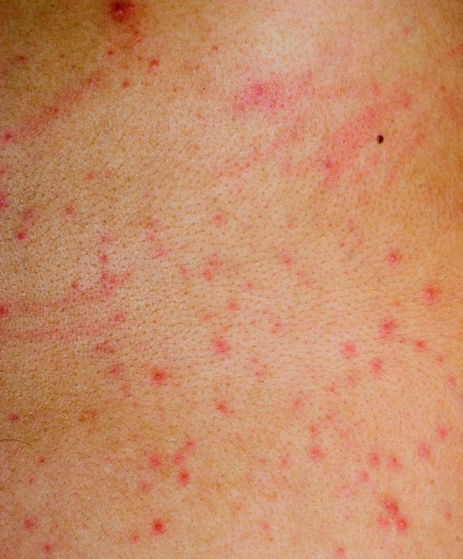Itchy Skin Rash On Back