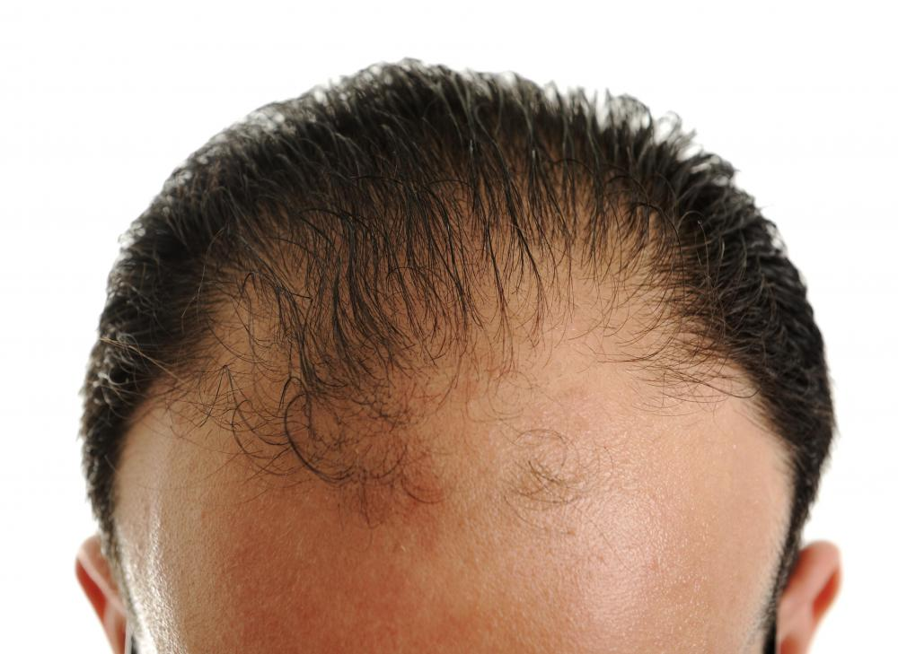 A Man With A Receding Hairline.