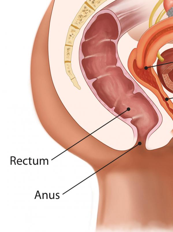 During a rectopexy, an incision is made along the abdomen, and the rectum is separated from the surrounding tissues.