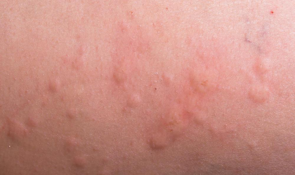 Hives may occur as a result of an allergic reaction.