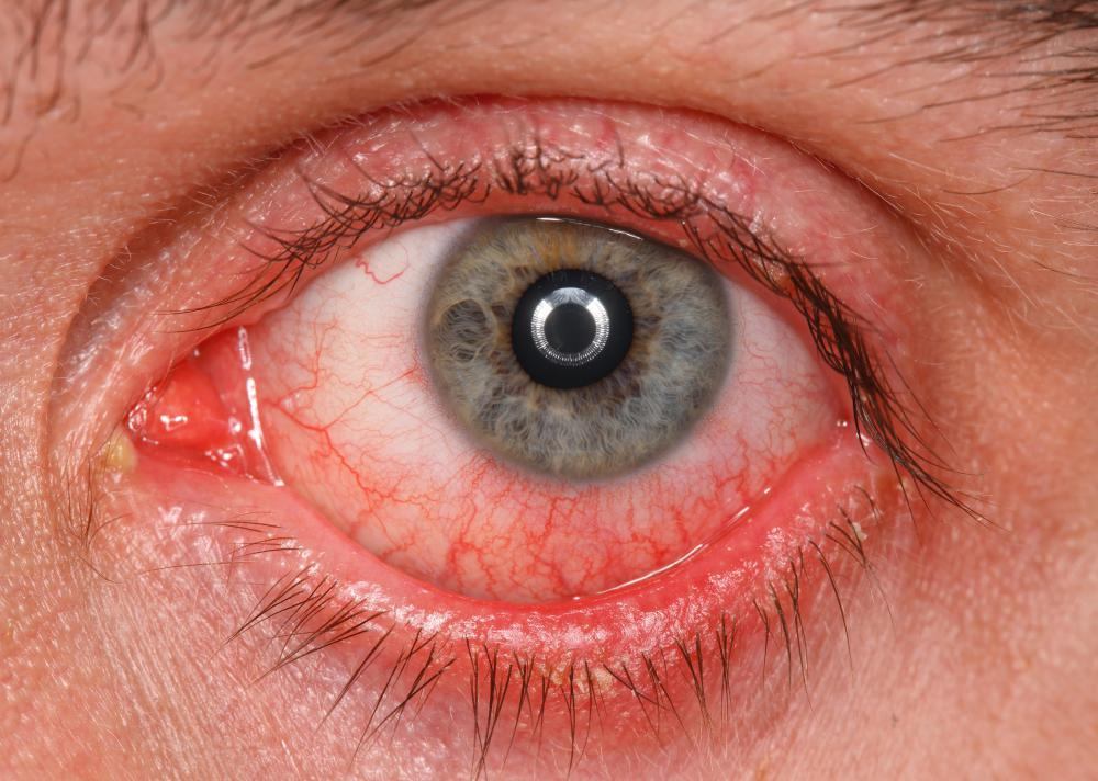 Itchy eyes, combined with eye redness may be a sign of conjuctivitis which needs special treatment.