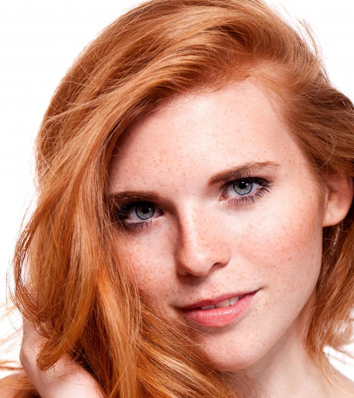 Lentigines are more prevalent in red-haired people.