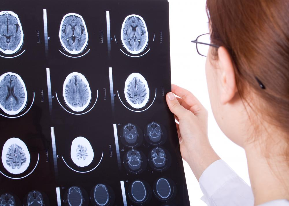 A doctor may choose to study brain scans of a patient to confirm a diagnosis of cerebellar ataxia.