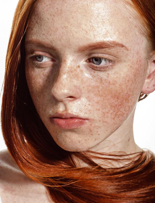 Freckle creams inhibit melanin production, thus reducing freckles.