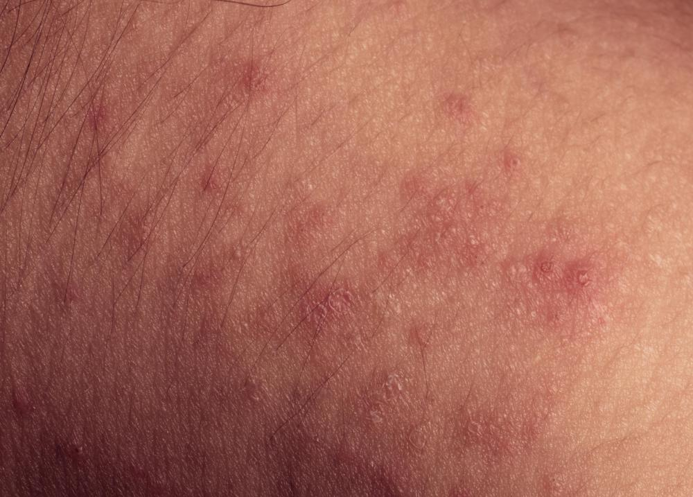 Common Rashes: Types, Symptoms, Treatments, & More